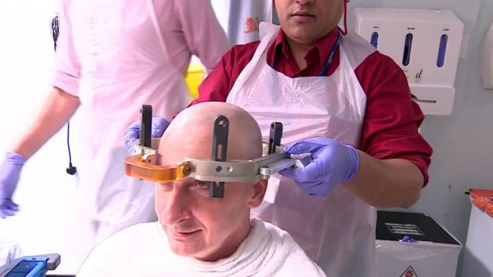 Tratamento com ultrassom cura paciente com tremores Viver Agora
